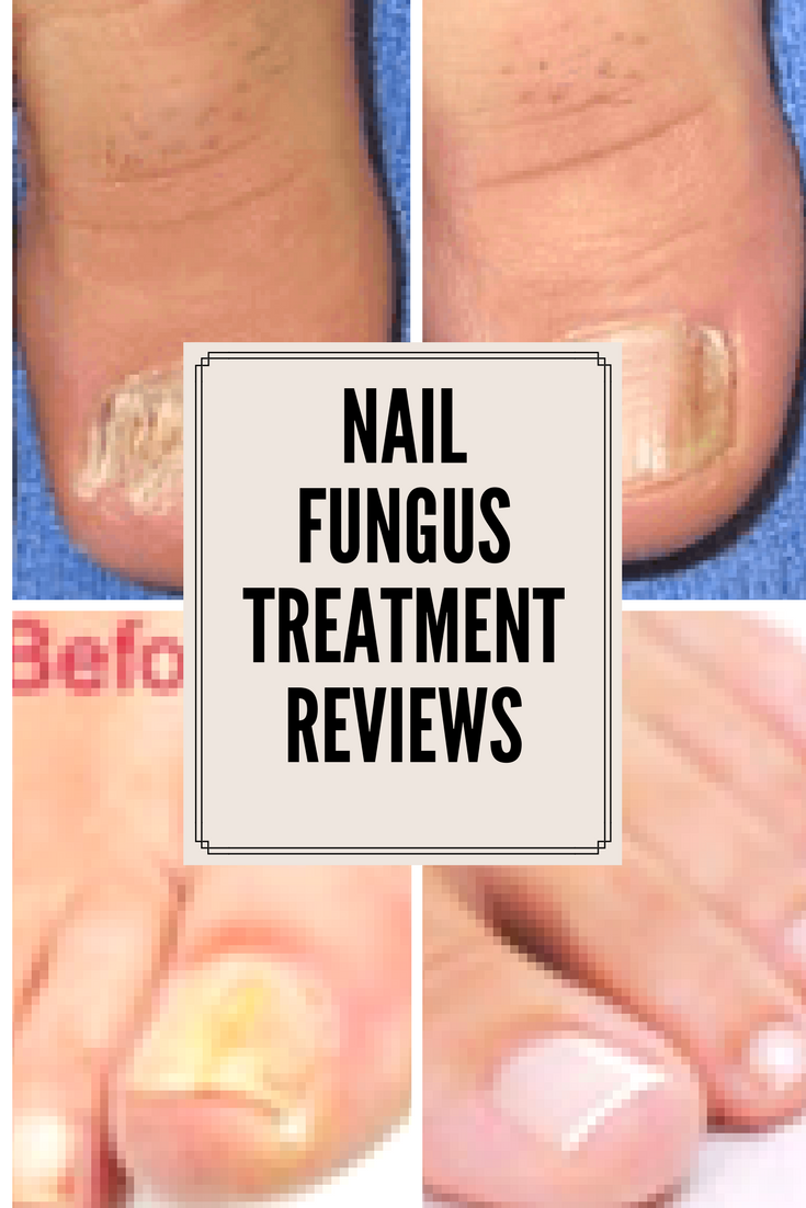 nail fungus before and after photos
