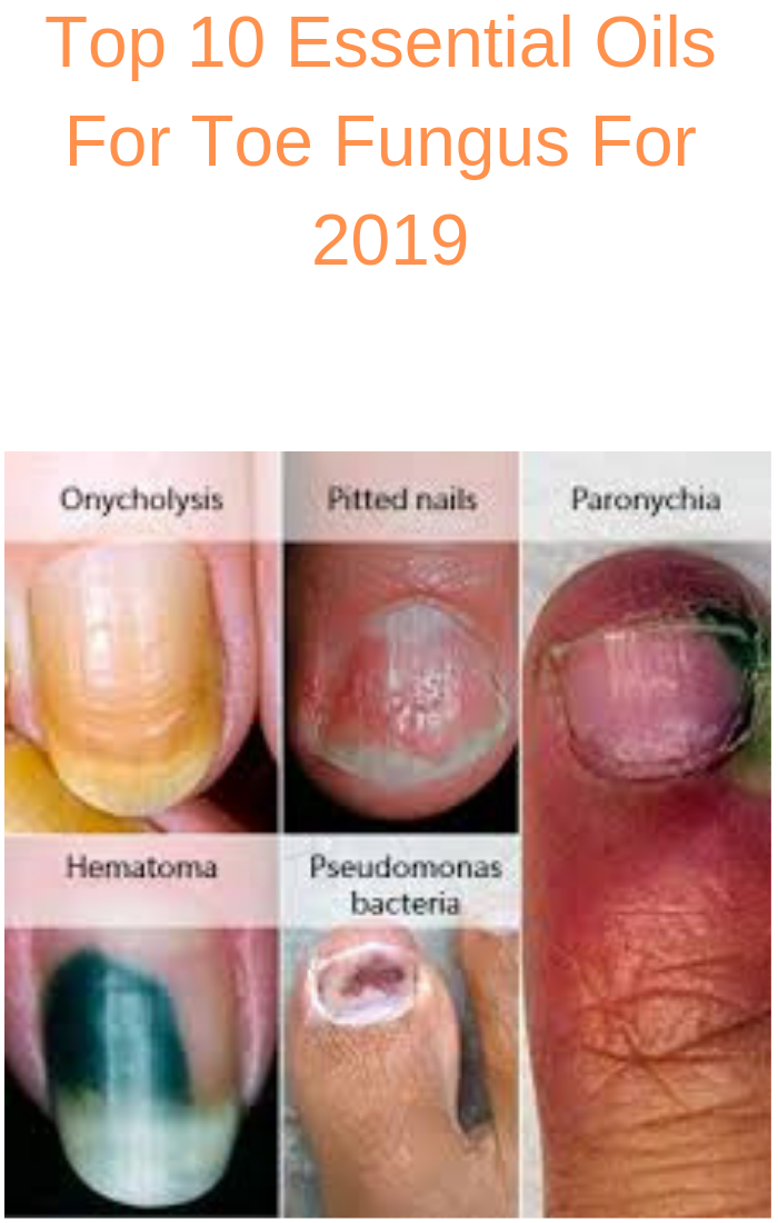 Multiple pictures of nail fungus