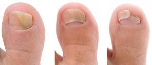 Stages of toenail fungus growth