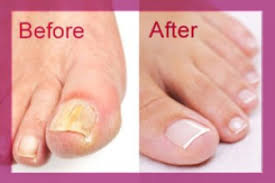 toenail fungus before and after picture