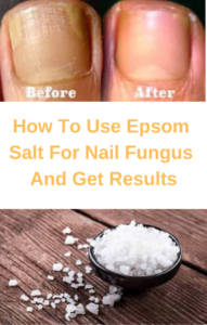 epsom salt in a bowel and toenail fungus before and after treatment