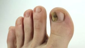 toe is infected by fungus