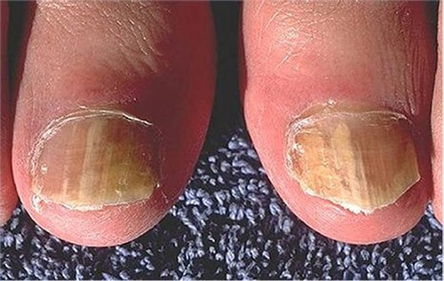 toenail with fungal infection