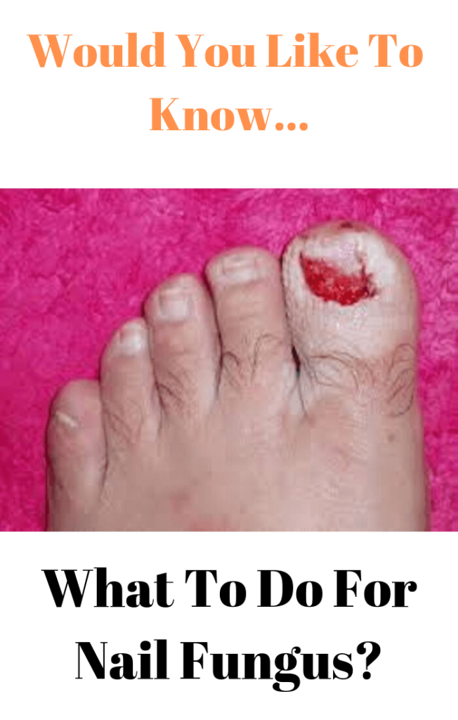 what-to-do-for-nail-fungus