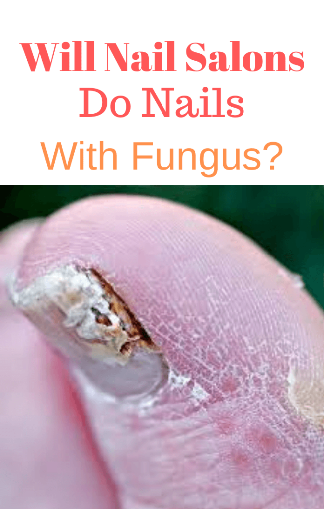 will-nail-salons-do-nails-with-fungus.