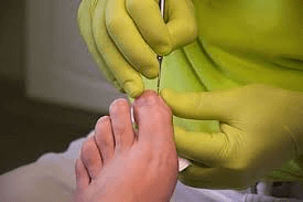 How To Avoid Being Infected In Nail Salons That Treat Toenail Fungus