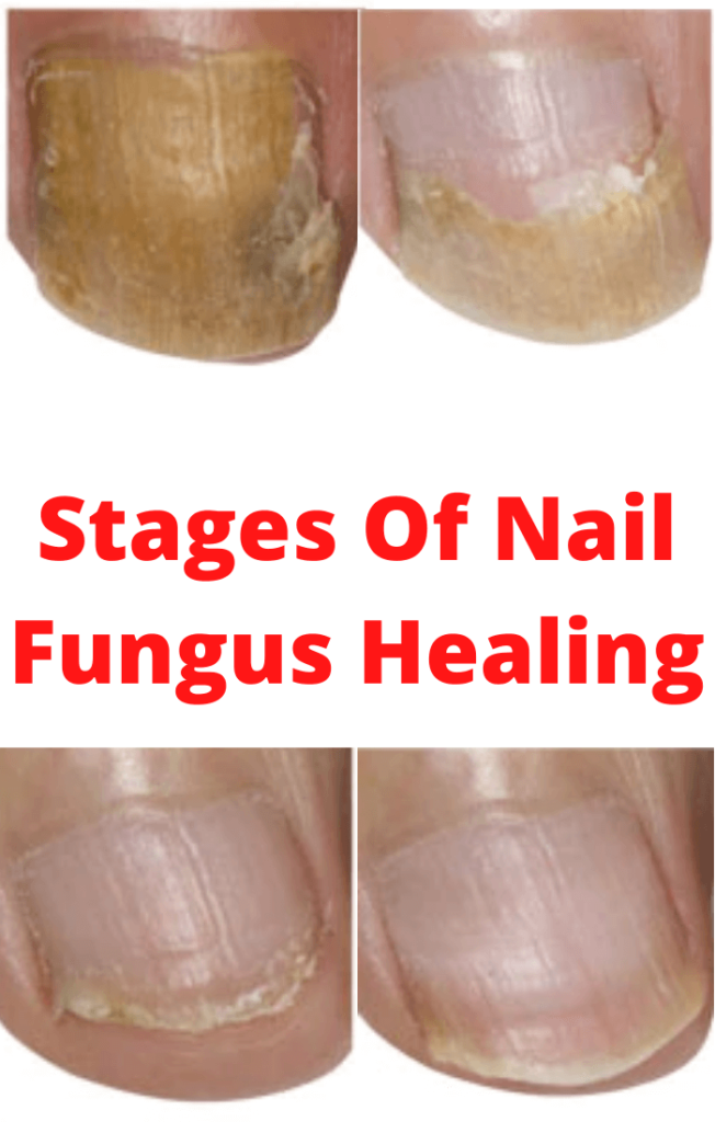 Stages Of Nail Fungus Healing