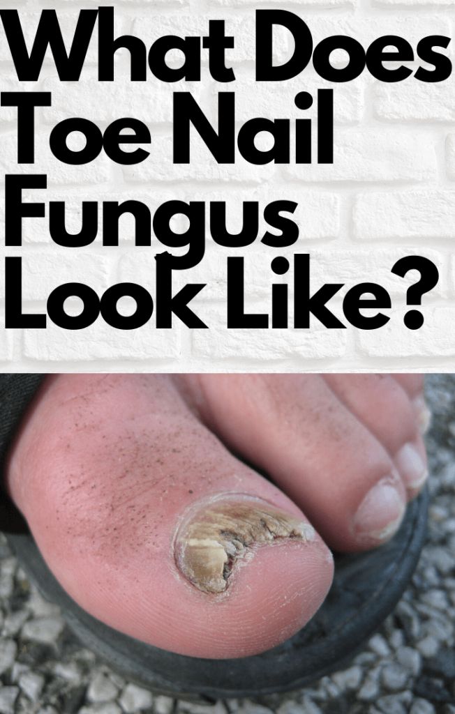 What Does Toe Nail Fungus Look Like