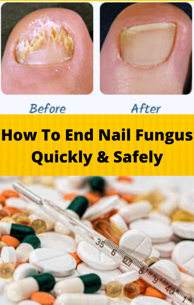 How To End Nail Fungus