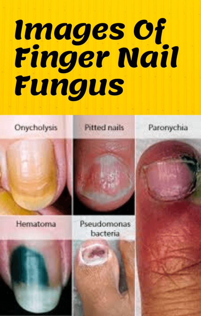 Images Of Finger Nail Fungus