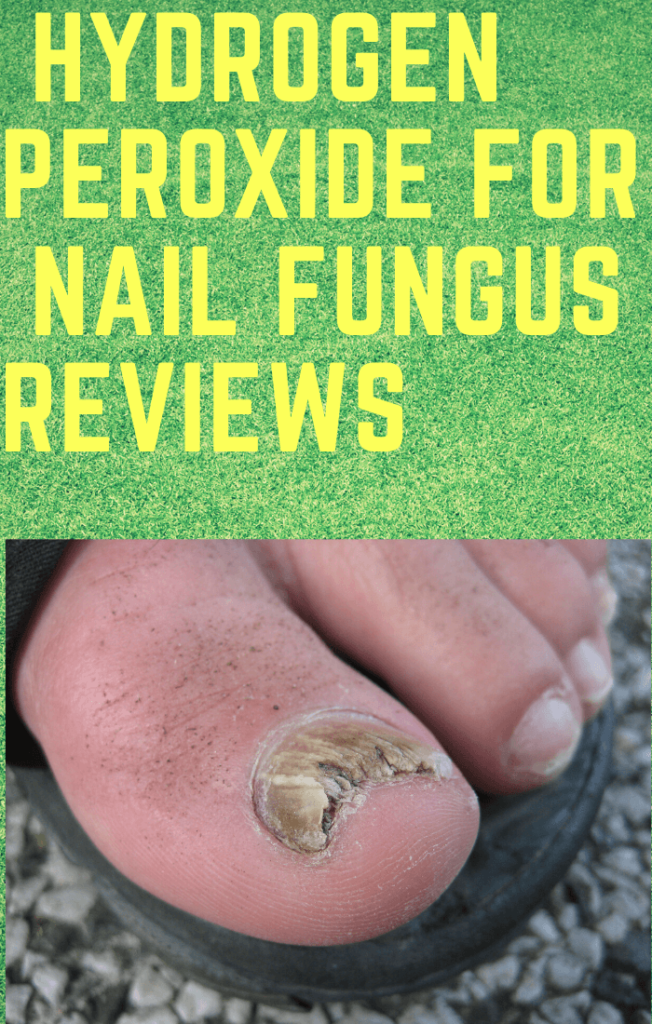 Hydrogen peroxide for nail fungus reviews