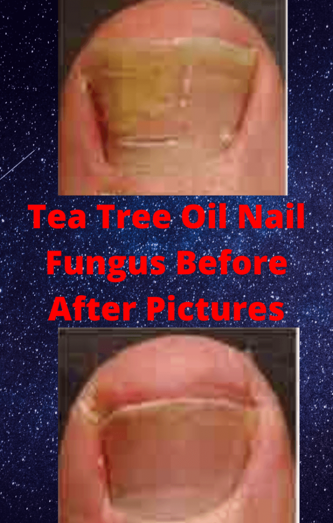 Tea Tree Oil Nail Fungus Before After Pictures