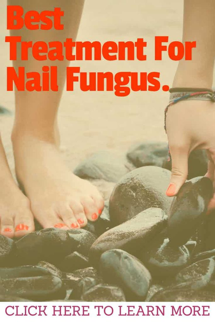 BEST-TREATMENT-FOR-NAIL-FUNGUS