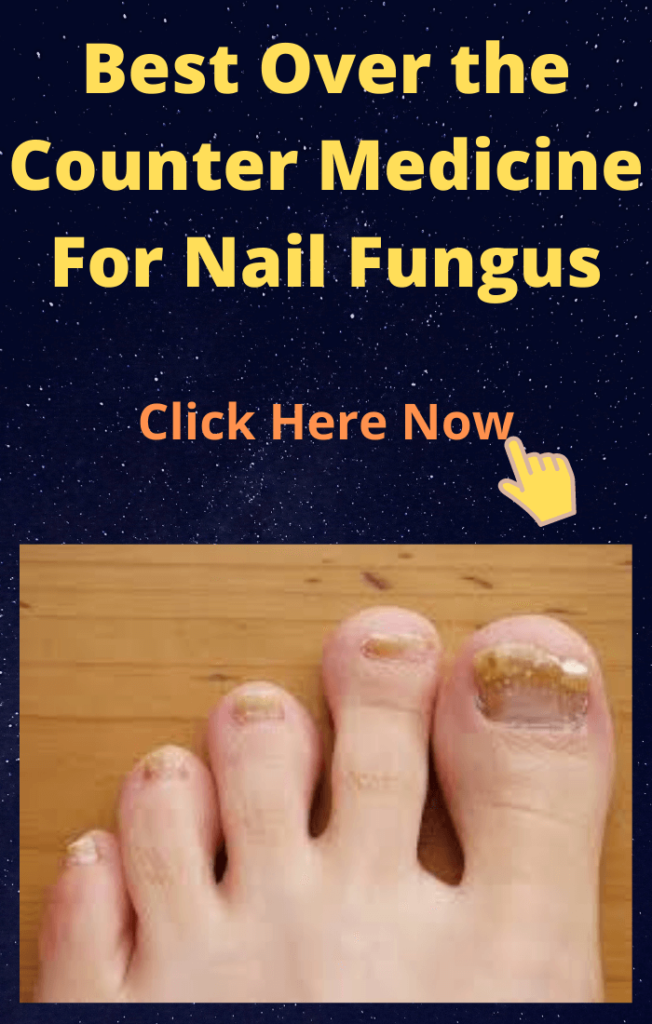 Best-Over-the-Counter-Medicine-For-Nail-Fungus