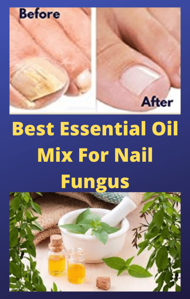 Essential-Oil-Mix-For-Nail-Fungus