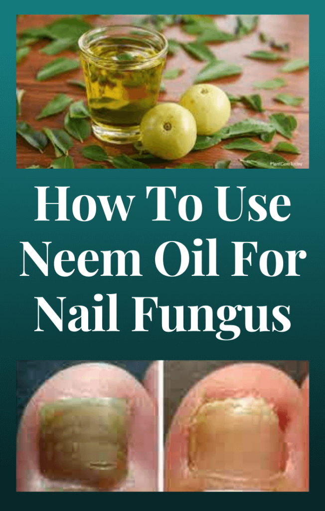 Neem-Oil-For-Nail-Fungus