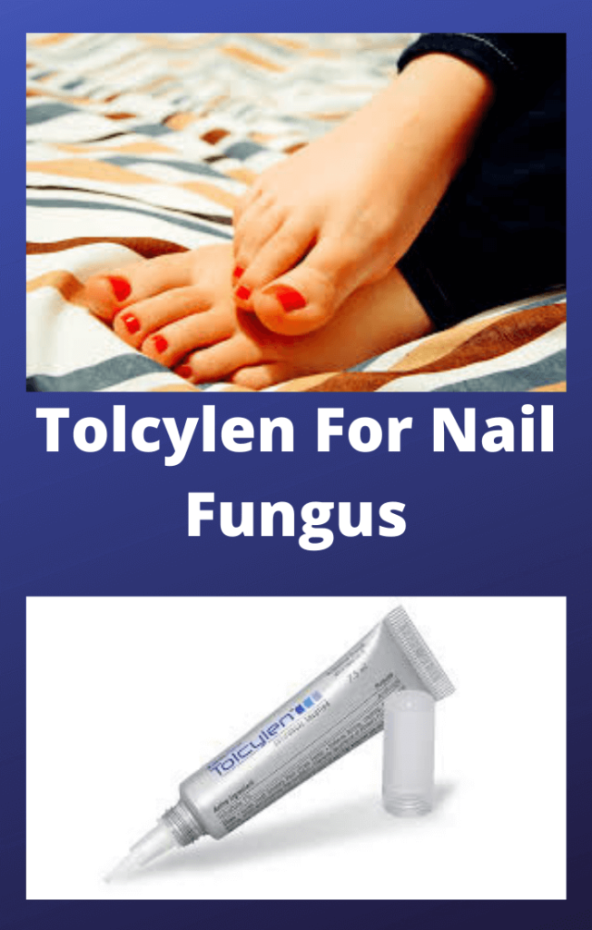 Tolcylen-For-Nail-Fungus