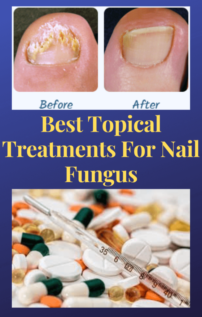 Topical-Treatments-For-Nail-Fungus